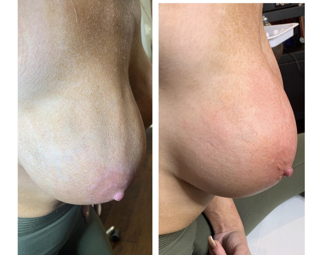 Vampire Breast Lift Before and After Photos