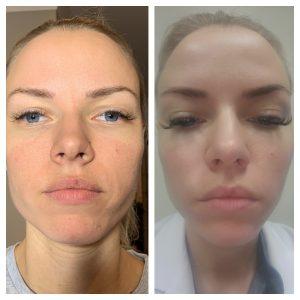 Aquagold skin treatment