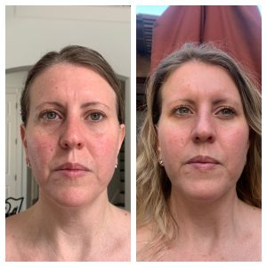 Patient 1 Before and After Photos