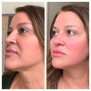 Instant lift to define the jawline, lifting the nasolabial folds and marionette lines. The crow feet areas are lifted as well.