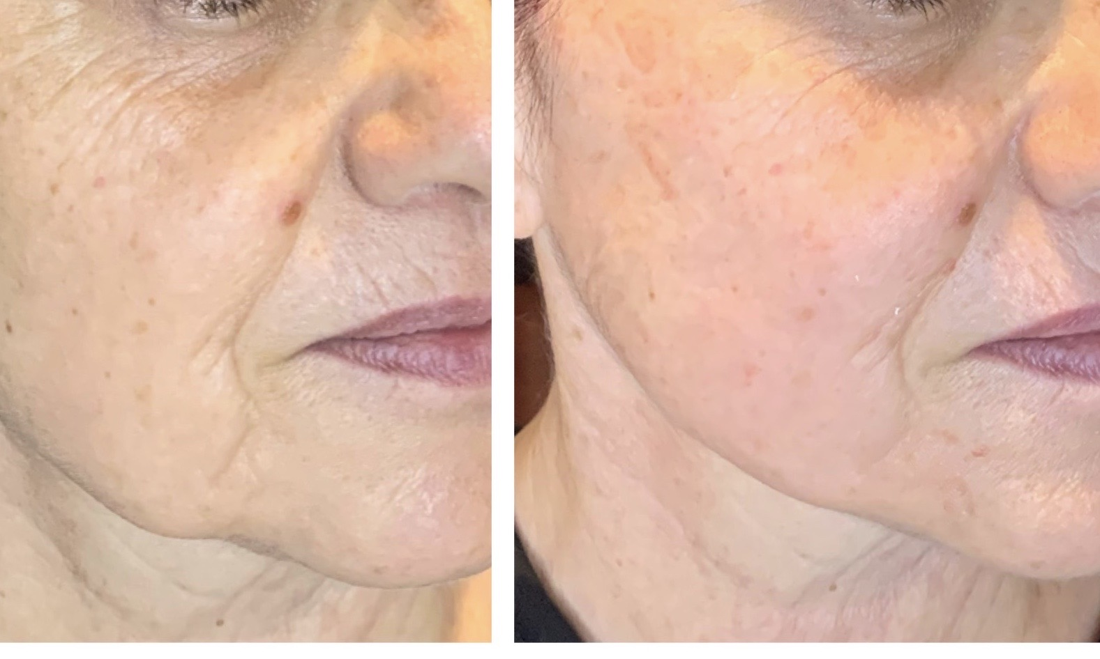After PRP treatment, skin is healthier, firmer, & fine lines are smoothed out.