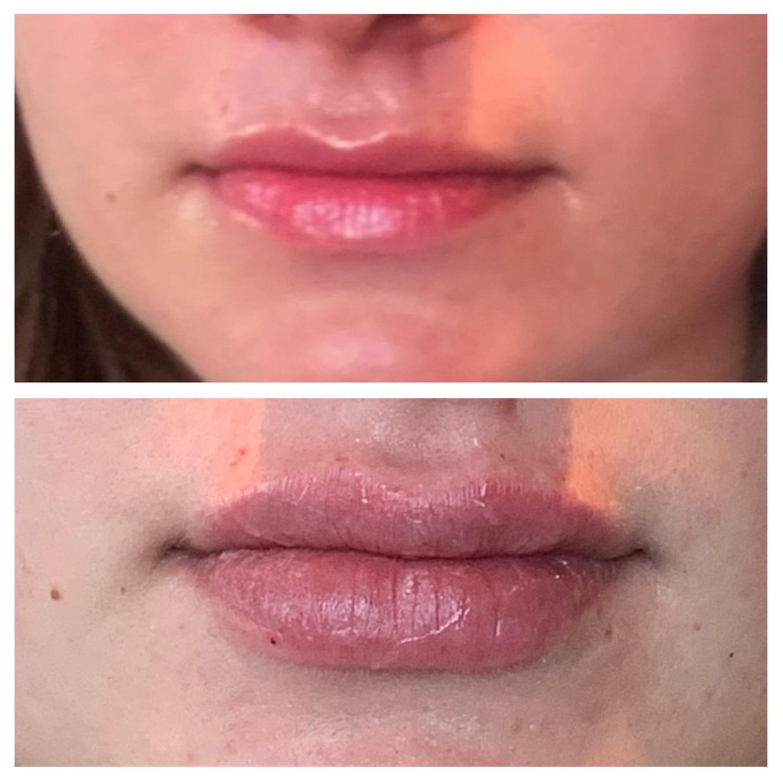 PDO threads used to create a fuller lip shape.