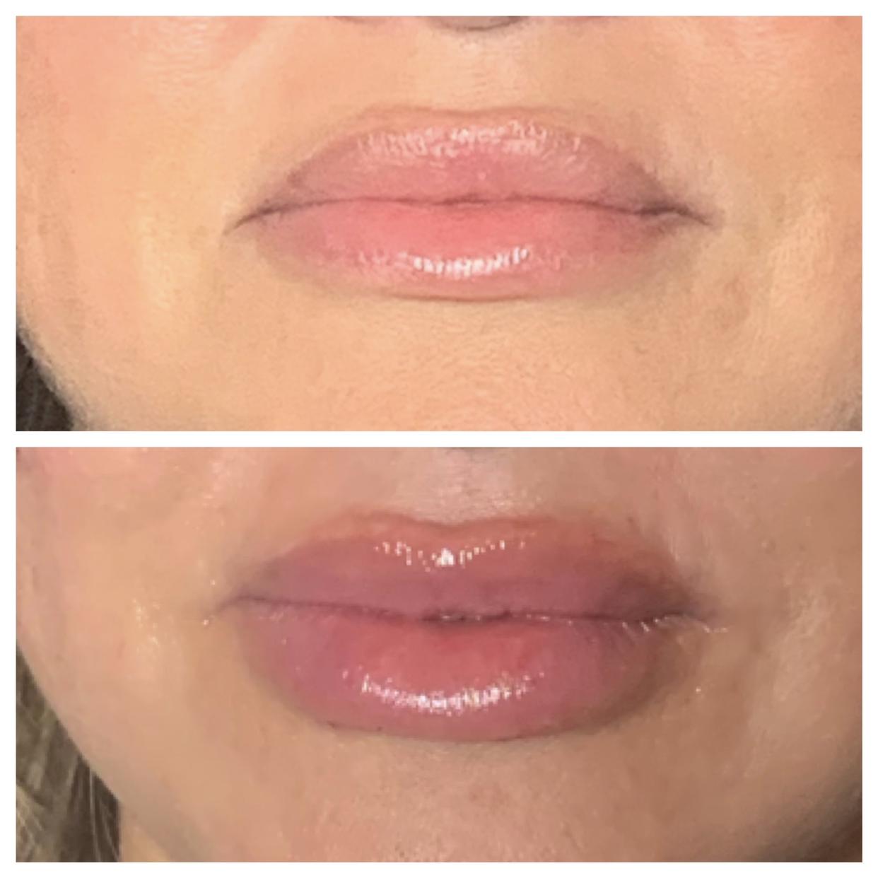 Dermal Filler for Lip Augmentation