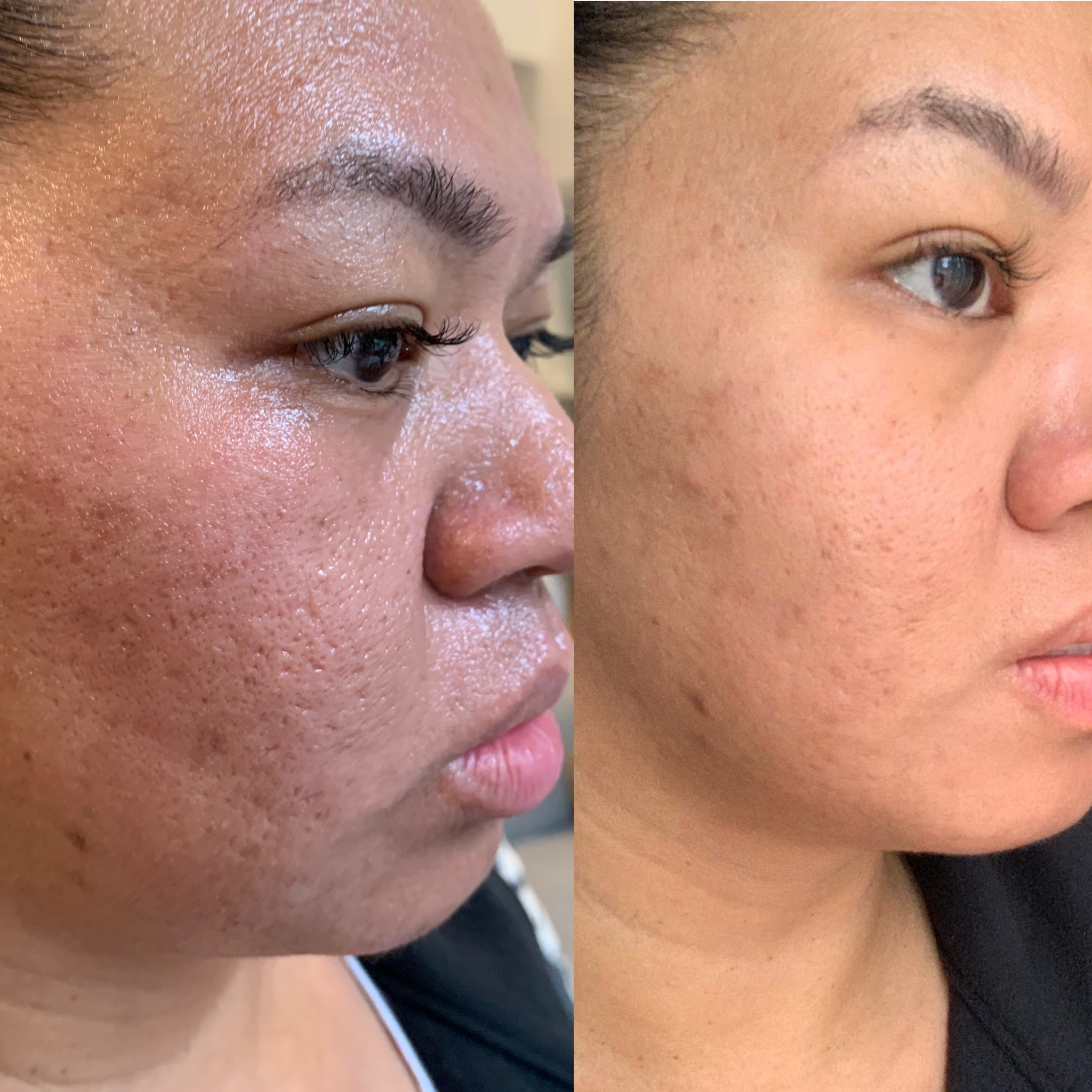 PRP Treatment helps to reduce scarring due to acne, and improve skin texture.